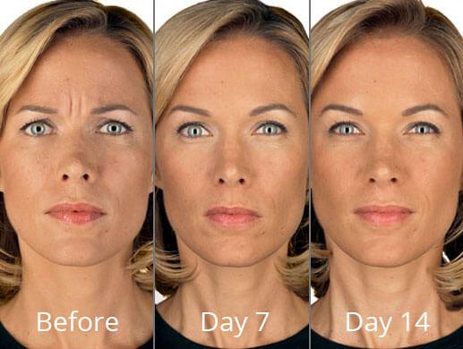 Botox in Syracuse, NY - CNY Cosmetic & Reconstructive Surgery