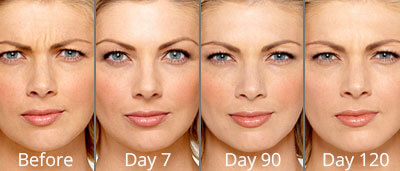 Botox & Dermal Fillers Before & After Photos in Syracuse, New York at CNY Cosmetic & Reconstructive Surgery