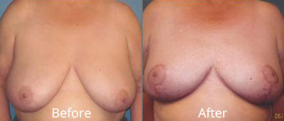 Breast Reduction Before & After Photos in Syracuse, New York at CNY Cosmetic & Reconstructive Surgery