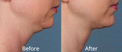 Kybella Before & After Photos in Syracuse, New York at CNY Cosmetic & Reconstructive Surgery
