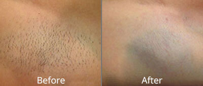 Laser Hair Removal & Waxing Before & After Photos in Syracuse, New York at CNY Cosmetic & Reconstructive Surgery