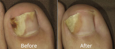 Laser Nail Fungus Treatment Before & After Photos in Syracuse, New York at CNY Cosmetic & Reconstructive Surgery
