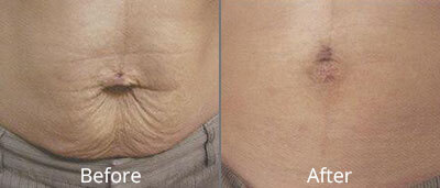 Laser Skin Tightening Before & After Photos in Syracuse, New York at CNY Cosmetic & Reconstructive Surgery