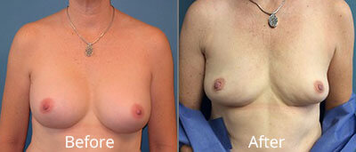 Other Breast Procedures Before & After Photos in Syracuse, New York at CNY Cosmetic & Reconstructive Surgery