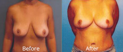 Breast Lift Before & After Photos in Syracuse, New York at CNY Cosmetic & Reconstructive Surgery