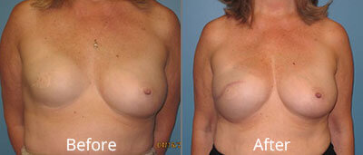 Breast Reconstruction Before & After Photos in Syracuse, New York at CNY Cosmetic & Reconstructive Surgery