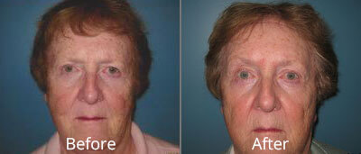 Brow Lift Before & After Photos in Syracuse, New York at CNY Cosmetic & Reconstructive Surgery
