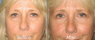 Eyelid Surgery Before & After Photos in Syracuse, New York at CNY Cosmetic & Reconstructive Surgery