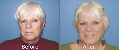 Facelift & Neck Lift Before & After Photos in Syracuse, New York at CNY Cosmetic & Reconstructive Surgery