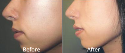 Facial Implants Before & After Photos in Syracuse, New York at CNY Cosmetic & Reconstructive Surgery