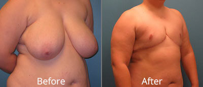 Gender Reassignment Before & After Photos in Syracuse, New York at CNY Cosmetic & Reconstructive Surgery