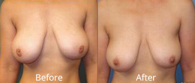 Inverted Nipples Before & After Photos in Syracuse, New York at CNY Cosmetic & Reconstructive Surgery