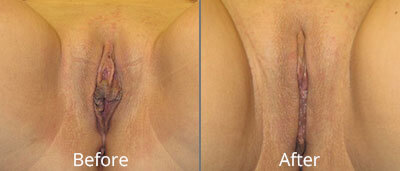 Labiaplasty Before & After Photos in Syracuse, New York at CNY Cosmetic & Reconstructive Surgery