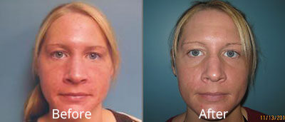 Laser Skin Resurfacing Before & After Photos in Syracuse, New York at CNY Cosmetic & Reconstructive Surgery