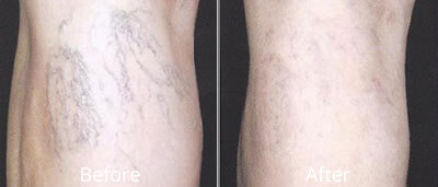 Laser Spider Vein Treatment Before & After Photos in Syracuse, New York at CNY Cosmetic & Reconstructive Surgery