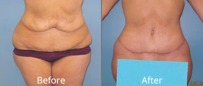 Lower Body Lift Before & After Photos in Syracuse, New York at CNY Cosmetic & Reconstructive Surgery