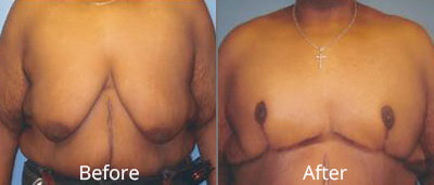 Male Breast Reduction Before & After Photos in Syracuse, New York at CNY Cosmetic & Reconstructive Surgery