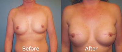 Mastectomy Procedures Before & After Photos in Syracuse, New York at CNY Cosmetic & Reconstructive Surgery
