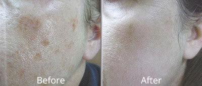 Photofacials Before & After Photos in Syracuse, New York at CNY Cosmetic & Reconstructive Surgery