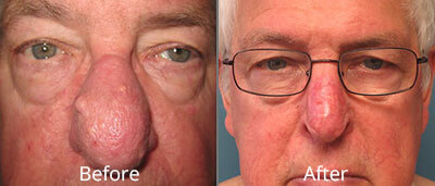 Skin Cancer Diagnosis & Treatment Before & After Photos in Syracuse, New York at CNY Cosmetic & Reconstructive Surgery