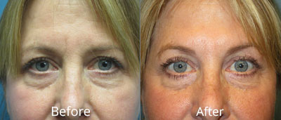 Botox Before & After Photos in Syracuse, New York at CNY Cosmetic & Reconstructive Surgery
