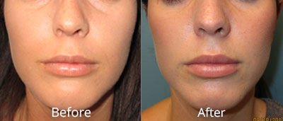 Dermal Fillers in Syracuse - CNY Cosmetic & Reconstructive