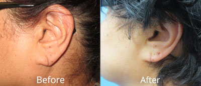 Ear Surgery Before & After Photos in Syracuse, New York at CNY Cosmetic & Reconstructive Surgery