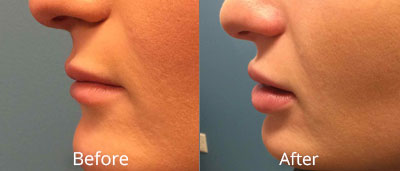 Lip Implants Before & After Photos in Syracuse, New York at CNY Cosmetic & Reconstructive Surgery