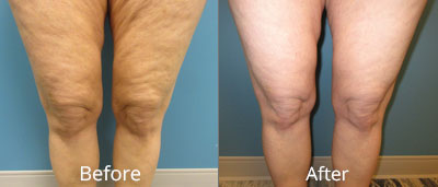 Liposuction Before & After Photos in Syracuse, New York at CNY Cosmetic & Reconstructive Surgery