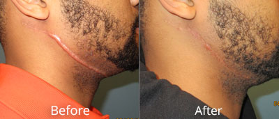 Scar Revisions Before & After Photos in Syracuse, New York at CNY Cosmetic & Reconstructive Surgery