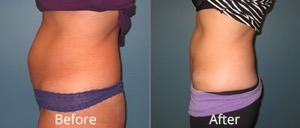 Lipo before and after!