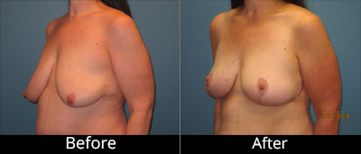 Breast Augmentation Before & After Photos in Syracuse, New York at CNY Cosmetic & Reconstructive Surgery