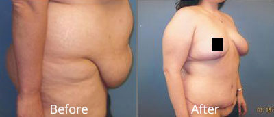 Tummy Tuck Before & After Photos in Syracuse, New York at CNY Cosmetic & Reconstructive Surgery